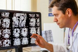 Diagnostyka postaci sporadycznej choroby Creutzfeldta-Jakoba – przegląd piśmiennictwa