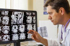 Postępowanie z niepękniętymi tętniakami mózgu