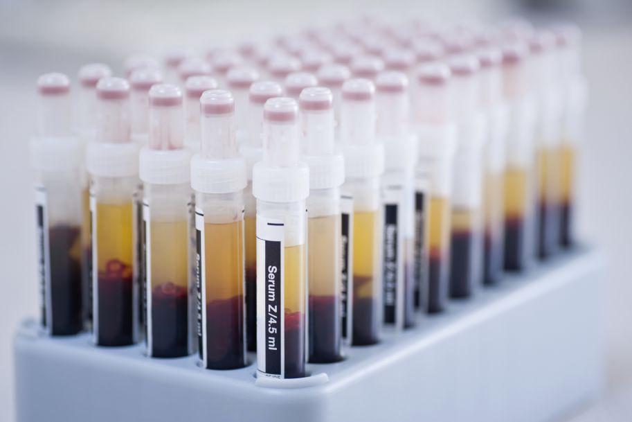 Bortezomib podawany podskórnie jako nowa obiecująca droga do skutecznego leczenia podtrzymującego w szpiczaku plazmocytowym