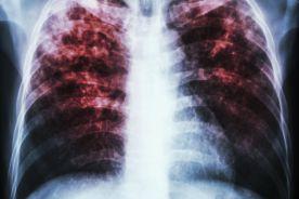 Choroba płuc gorsza niż wiele nowotworów
