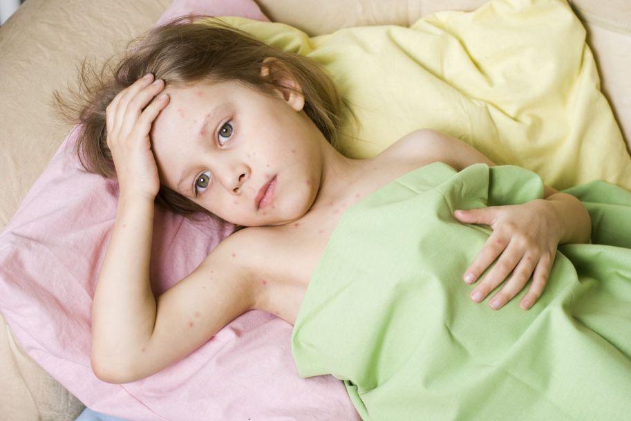Powikłania płucne w przebiegu chorób zakaźnych wieku dziecięcego