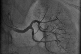 Leczenie opornego nadciśnienia tętniczego – odnerwienie tętnicy nerkowej