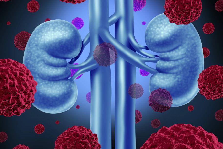 Nowotwory u biorców allogennego przeszczepu nerkowego
