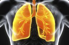 Alergiczne zapalenie pęcherzyków płucnych