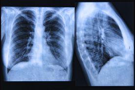 Mukowiscydoza – problemy diagnostyczno-terapeutyczne
