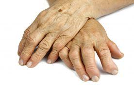 Doświadczenia w zamianie leków biologicznych w obszarze reumatologii