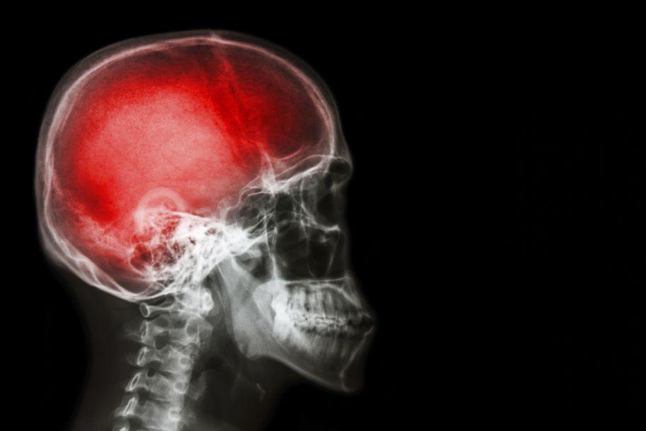 Urazy głowy – postępowanie w praktyce neurologicznej