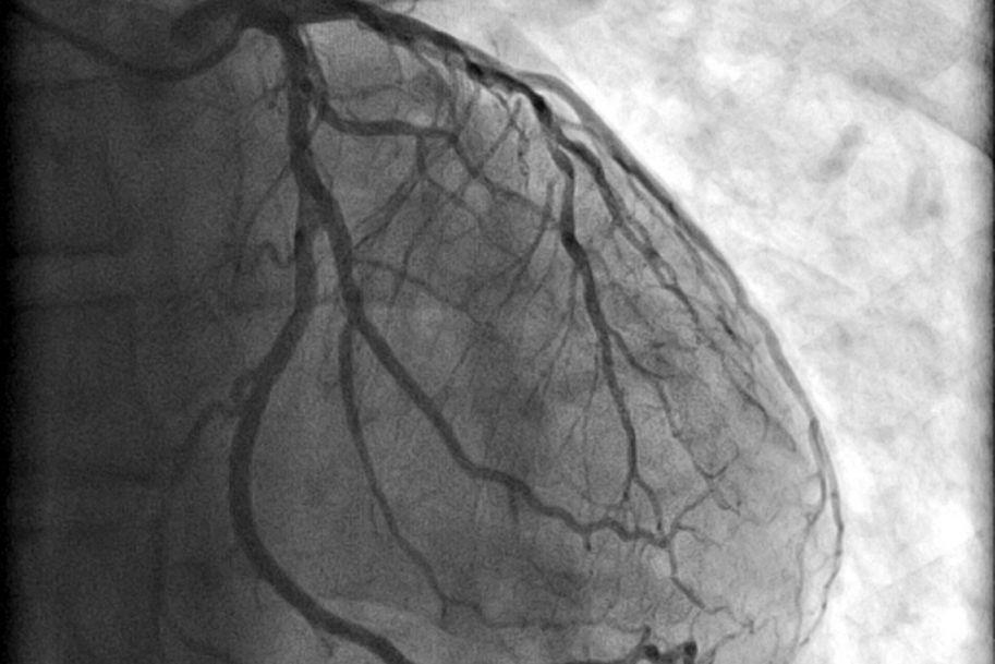 Czynniki proangiogenne – nowe możliwości modyfikacji angiogenezy