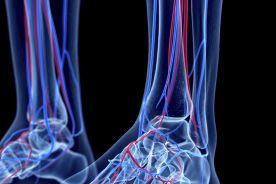 Tętniaki tętnic podkolanowych – ciągle istniejący problem diagnostyczno-terapeutyczny
