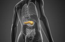 Pankreatojejunostomia vs pankreatogastrostomia u chorych poddanych pankreatoduodenektomii z powodu guza trzustki lub brodawki Vatera