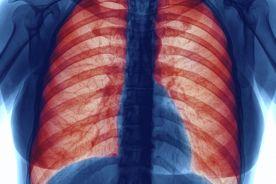 Tłuszcz w płucach, czyli dlaczego nadwaga grozi astmą