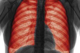 Wpływ enobosarmu na utratę masy mięśniowej i stopień sprawności u pacjentów z chorobą nowotworową