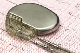 Czy obecność obturacyjnego bezdechu sennego zmienia wskazania do wszczepienia stymulatora serca? – opis przypadków