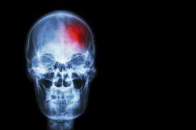 Definicja i leczenie udaru mózgu na przestrzeni wieków