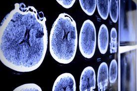 Technicy RTG: szkoleń wymagają lekarze, a nie my!