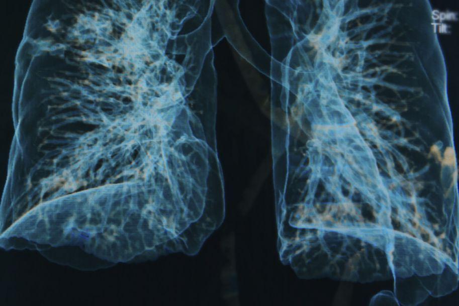 Idiopatyczne włóknienie płuc – czy nowe leki wpływają na naturalny przebieg choroby?