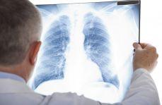 Wczesna lub miejscowo zaawansowana postać niedrobnokomórkowego raka płuca: wytyczne ESMO dotyczące diagnostyki, leczenia oraz monitorowania