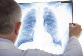 Zmiany w układzie oddechowym w przebiegu układowych chorób tkanki łącznej
