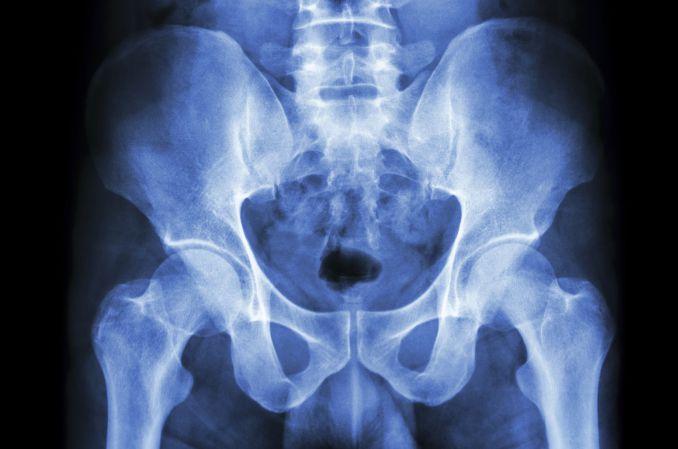 Farmakoterapia bólu w chorobie zwyrodnieniowej stawów