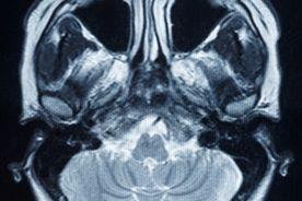 Terapia miejscowo zaawansowanych nowotworów głowy i szyi: wyniki badania PARADIGM
