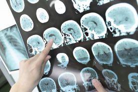 Medyczna sztuczna inteligencja czasem widzi za dużo