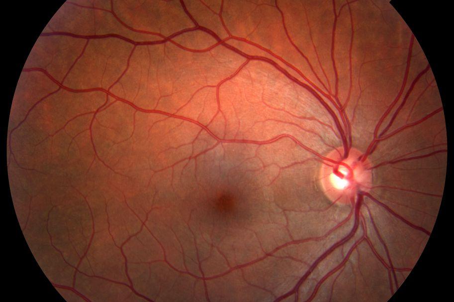W swojej praktyce mam wielu pacjentów w podeszłym wieku chorujących na cukrzycę. Kiedy powinienem skierować takiego chorego na dodatkową konsultację nefrologiczną w przypadku podejrzenia przewlekłych powikłań nerkowych cukrzycy oraz jak często wykonywać u takich chorych badania dna oczu?