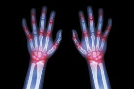 Choroby zapalne immunologicznie zależne (IMIDs) i towarzysząca im współchorobowość
