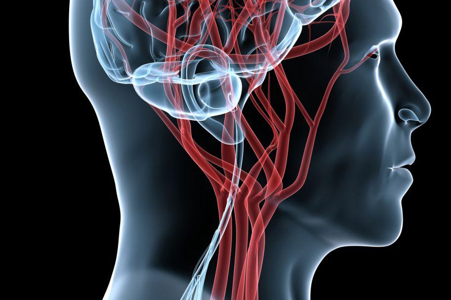 Izolowane zapalenie naczyń  ośrodkowego układu nerwowego