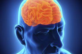 Choroba Alzheimera jest zaraźliwa