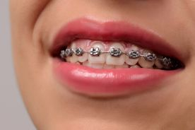 Ortodonta szczęścia nie daje