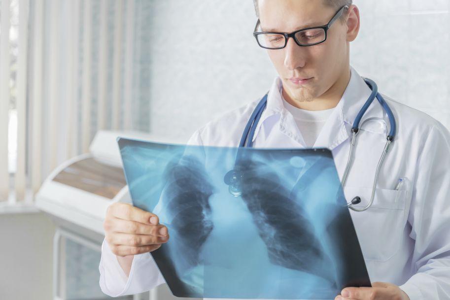Jednoczasowa chemioradioterapia z wykorzystaniem cisplatyny/winorelbiny u pacjentów z miejscowo zaawansowanym niedrobnokomórkowym rakiem płuca (stadium III)