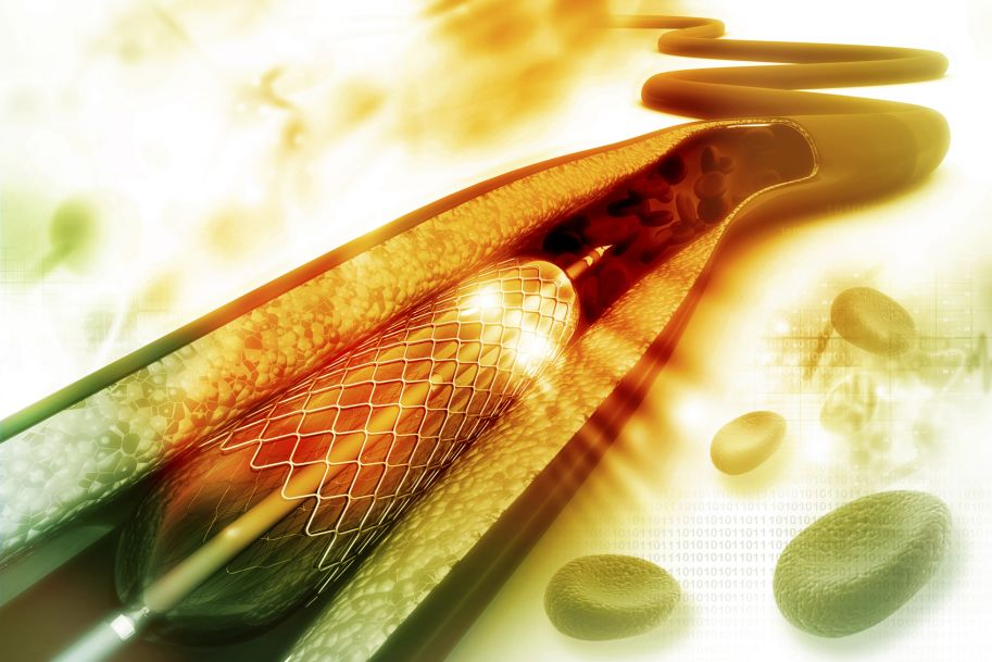 Interwencje przezskórne w kardiologii