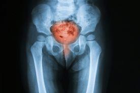 Pionierski zabieg urologiczny