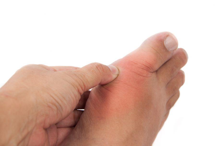 Dna moczanowa – rozpoznawanie i leczenie w codziennej praktyce lekarskiej