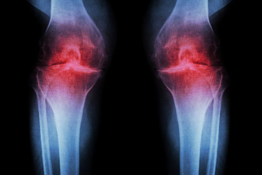 Ocena skuteczności leczenia uzdrowiskowego u kobiet z chorobą zwyrodnieniową stawów kolanowych