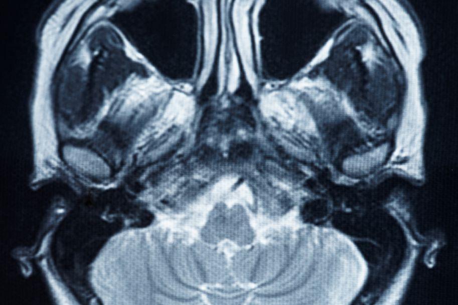 Mózgowe mikrokrwawienia – definicja, patofizjologia oraz następstwa