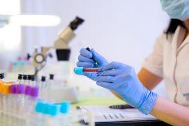 Test na obecność koronawirusa można zamówić z dostawą do domu