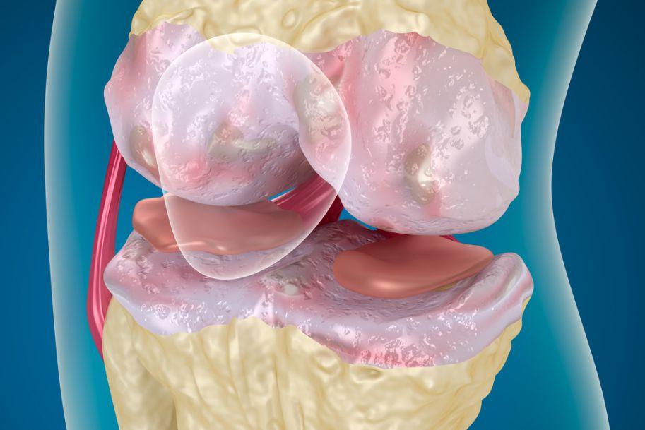 Ocena skuteczności różnych form terapii fizykalnej w leczeniu objawów gonartrozy
