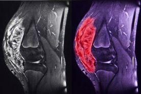 Cixutumumab oraz temsirolimus w terapii pacjentów z mięsakiem kości i tkanek miękkich