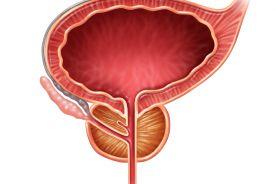 Znaczenie immunoterapii w uroonkologii – rak pęcherza moczowego