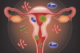 Proponowany algorytm postępowania w infekcjach grzybiczych sromu i pochwy