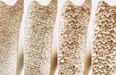 Ocena zależności między BMD i wskaźnikiem masy ciała BMI u kobiet z osteoporozą pomenopauzalną