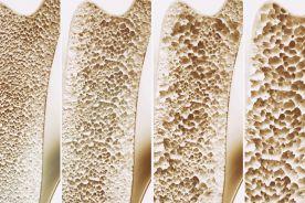 Otyłość a osteoporoza – powiązania między tkanką tłuszczową i kostną