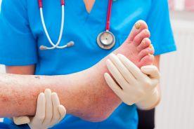 Czy przewlekłe niedokrwienie kończyn dolnych może stanowić problem leczniczy w praktyce lekarza rodzinnego?
