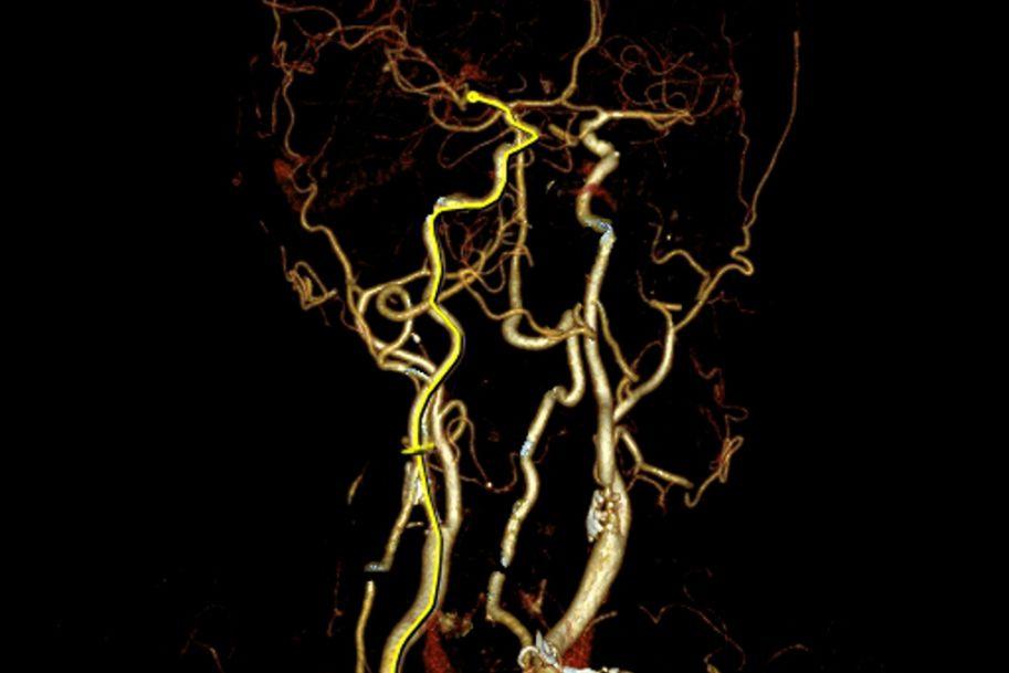 Udar niedokrwienny mózgu – epidemiologia, profilaktyka i leczenie