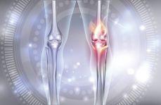 Glukozamina – bezpieczny wybór w leczeniu choroby zwyrodnieniowej stawu kolanowego