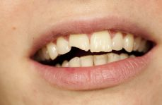 Ekstruzja ortodontyczna jako metoda leczenia złamań koronowo-korzeniowych zębów stałych – aktualny stan wiedzy