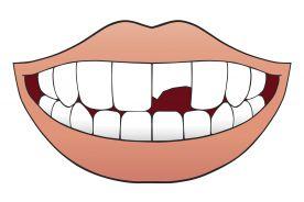 Kliniczna klasyfikacja urazowych uszkodzeń zębów według Andreasena