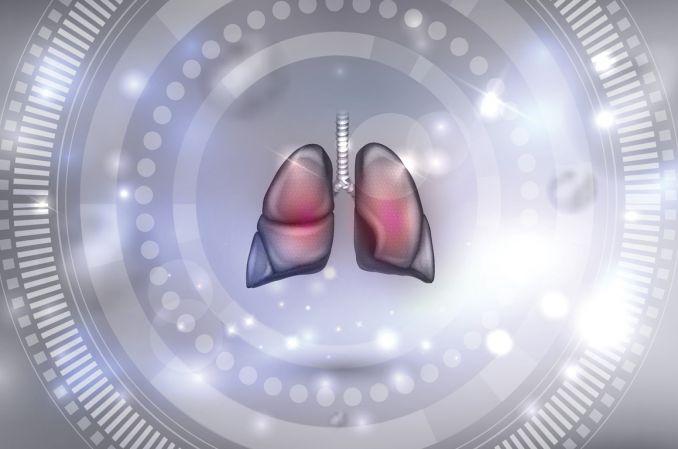 Samoistne włóknienie płuc – diagnostyka i nowe możliwości leczenia