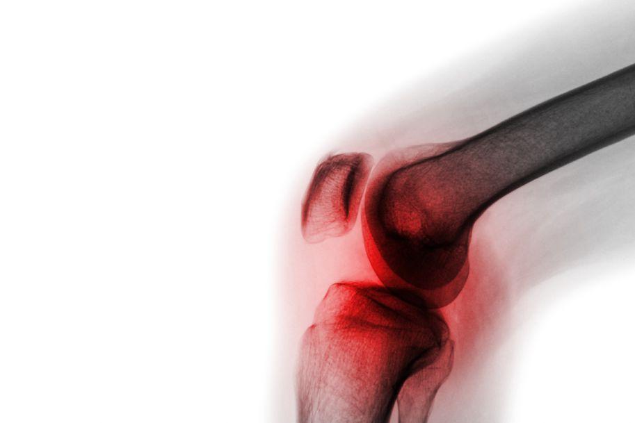 Porównanie skuteczności peloidoterapii i krioterapii w leczeniu objawów gonartrozy